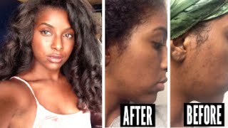 Skin Care Routine: Fade Dark Marks & Acne Scars