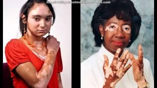 How To Treat Vitiligo Naturally At Home | Natural Treatment For Vitiligo
