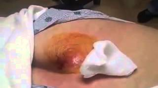 Pilonidal cyst being lanced  sebaceous cyst  and blackheads 1)