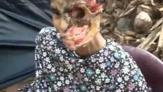 Necrotizing Fasciitis  - Mrs. Karunawathi needs Your Help !