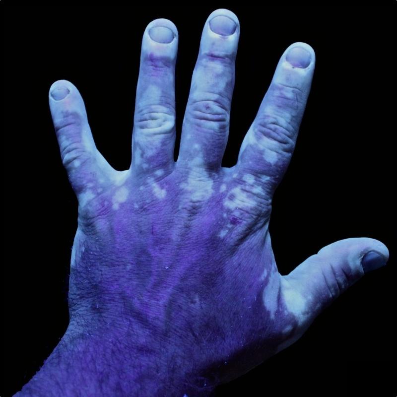 Vitiligo_UV_1
