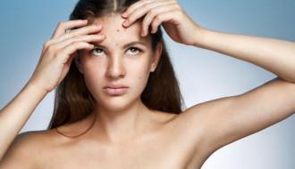 Acne Girl Skin Pimples