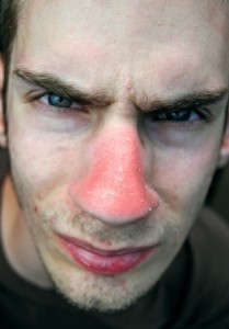 Sunburnt Skin of man